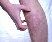 Itchy skin disease — Stock Photo