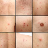 Chicken pox on human skin — Stock Photo