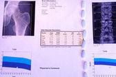 Osteoporosis diagnosis — Stock Photo