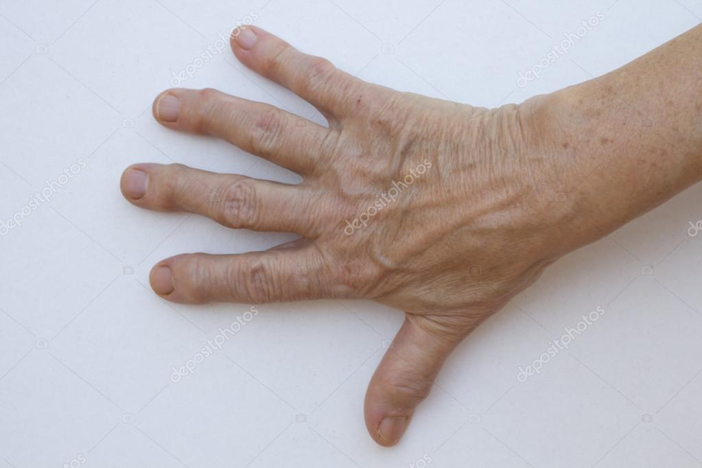 Closeup of senior hand with strong arthritis — Stock Photo #12728902