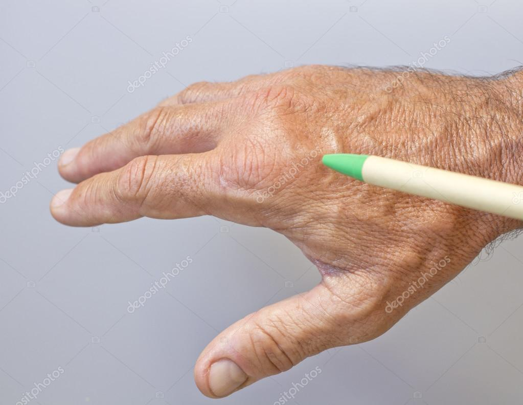 A picture of swollen male hand-closeup — Stock Photo #13404550