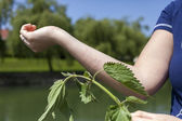 Stinging nettle allergic reaction — Stock Photo