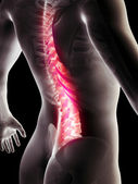 3d rendered anatomy illustration of painful back — Stockfoto