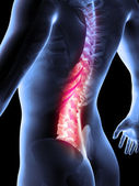 3d rendered anatomy illustration of painful back — Stock Photo