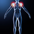 X ray of shoulder pain - Stock Photo