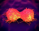 Cervical cancer cell, SEM of Cervical Carcinoma — Stock Photo