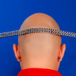Baldness problem — Stock Photo