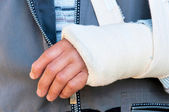 Broken hand — Stock Photo