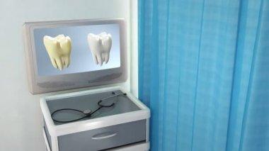 歯比較医療画面 — ストックビデオ