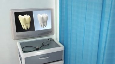 Tooth contrast medical screen — Stock Video