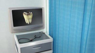 Dålig tand till vit tand medicinsk skärmen — Stockvideo