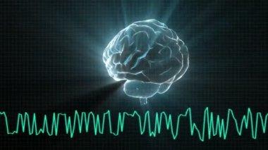X-ray Brain diagram of technology — Stock Video