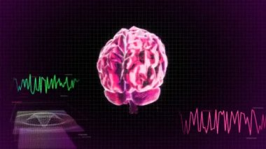 Red X-ray Brain diagram of technology — Stock Video