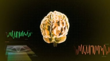 Gold X-ray Brain diagram of technology — Stock Video