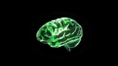 Green of X-ray Brain flare — Stock Video