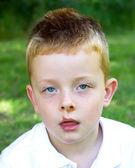 Young boy suffering from skin disease impetigo — Stock Photo