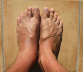 Broken ankle, mens feet — Stock Photo