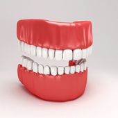 Dental Model — Stock Photo