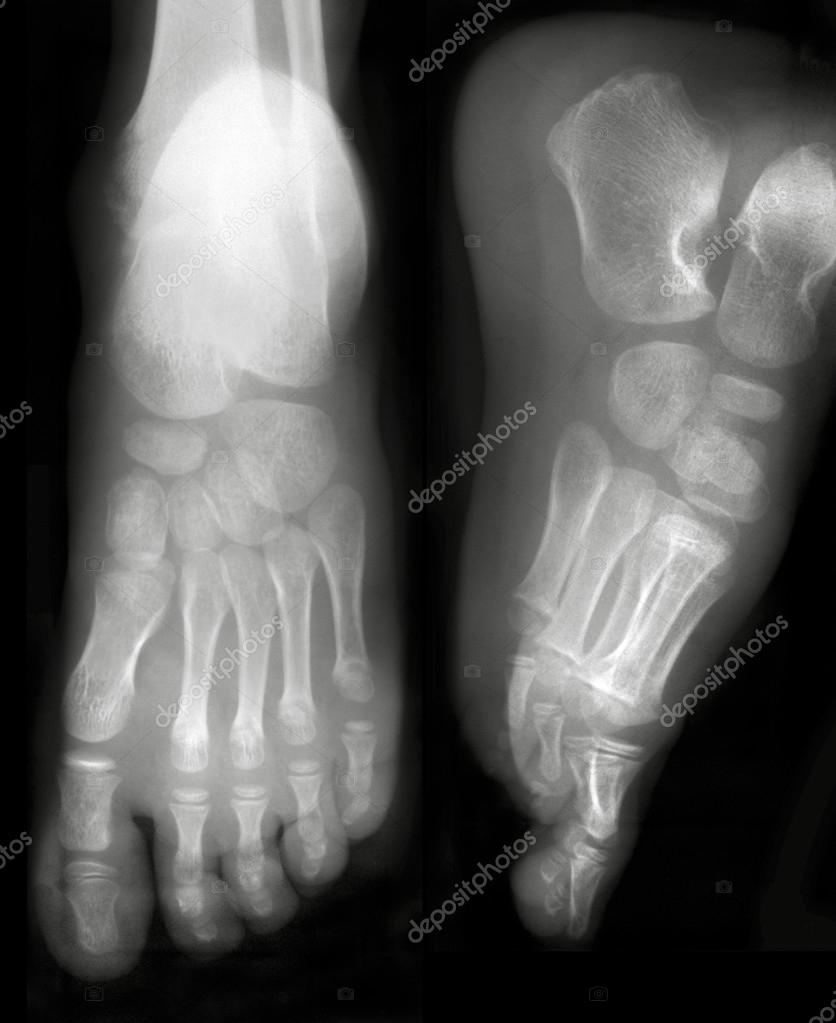 Front and side view of foots on x-ray film  Stock Photo #19022325