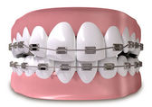 Teeth Fitted With Braces Close — Stock Photo