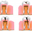 ������, ������: Structure of the tooth