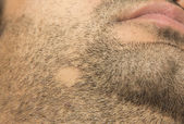 Alopecia Areata hair loss on cheek beard in a patch — Stock Photo