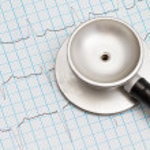Stethoscope and ECG chart — Stock Photo #12718514