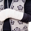 A woman with a broken arm — Stock Photo