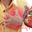 Stock Photo: Heart Attack ,Use hand grabbing chest