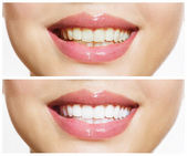 Woman Teeth Before and After Whitening. Oral Care — Stock Photo
