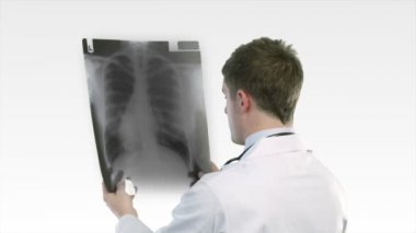 Doctor looking at an x-ray — Stock Video