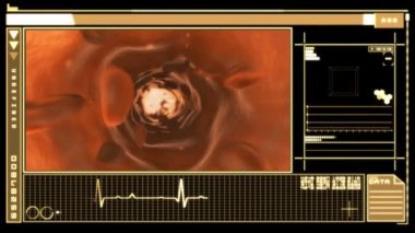 Digital interface displaying bloodflow through vein — Vídeo Stock
