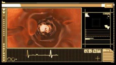 Digital interface displaying bloodflow through vein — Stock Video