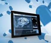 Brain on a digital tablet — Stock Photo