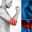 Three images of elbow pain — Stock Photo