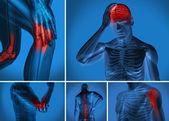 Smärta i olika kroppen — Stockfoto