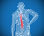 Transparent digital skeleton having pain on his back — Stock Photo