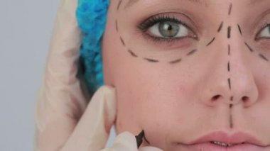 Video of woman with hair net and black dashes lines for a face lift — Stock Video