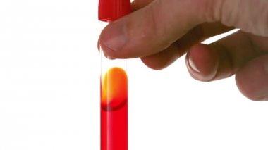 手旋流测试管的血 — 图库视频影像