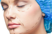 Close up on gorgeous young patient with dotted lines on the face — Stock Photo