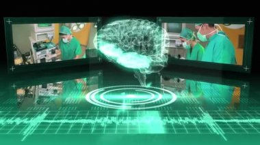 Revolving brain graphic with surgery clips — Stockvideo