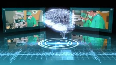 Revolving brain graphic with surgery clips — Stock Video