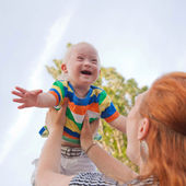 Baby with Down syndrome — Stock Photo