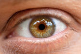 Conjunctivitis. Macro. The inflamed eye — Stock Photo