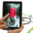 Doctor looking lumbar spine x-ray image on tablet for medical ex — Stock Photo