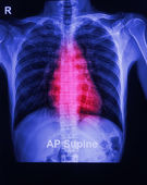 The x-ray image of a human chest — Stock Photo
