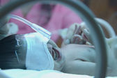 Premature baby with oxyzen under ultraviolet lamp in the incuba — Stock Photo
