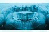 Panoramic dental X-Ray for Orthodontics and Jaw Orthopedics — Stock Photo