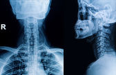 x-ray image of cervical spine, neck x-ray image — Foto de Stock