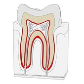 Cartoon image of tooth cut — Stock Photo